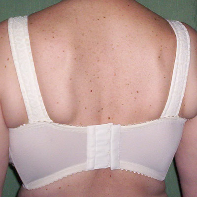 Gigantomastia blanco espalda