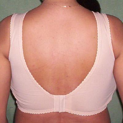Gigantomastia natural espalda